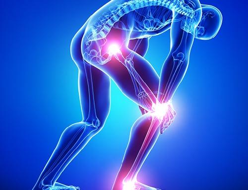 Plantari Ortopedici e Biomeccanici Sportivi